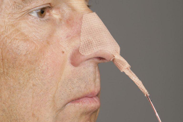 Nasensonde
