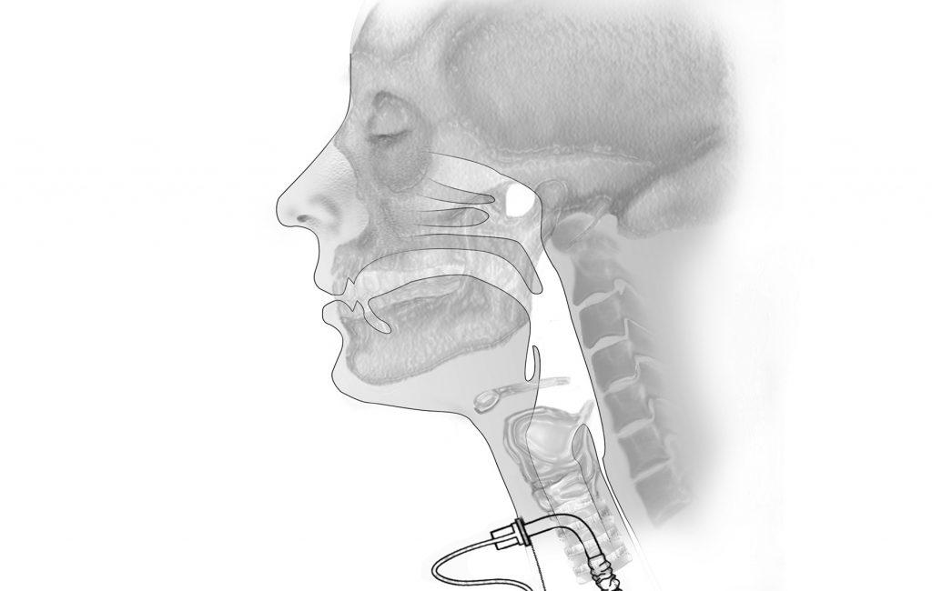 Trachealkanüle: Kann man damit schlucken?